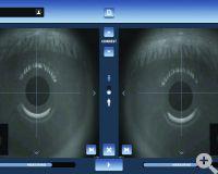 EyeRefract Messvorgang Fortschrittsanzeige binokular