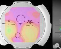 C6 Wellenfrontmatrix ermöglicht Glasmapping astigmatisches Verlaufsmap