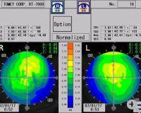 CXT3000 topo maps beider Augen