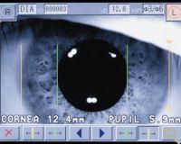 CXT3000 Pupillendurchmesser- und Weiß-zu-Weiß-Abstandsmesseung