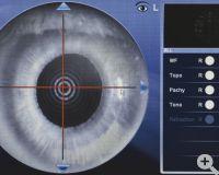Pupillometrie, photopische und mesopische Resultate mit Dezentrationsmessung (pupillarer Shift)