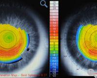 Farbcodierte topographische Verlaufskarten und Wellenfrontmaps für Kornea und Auge in selektierbarer Darstellung
