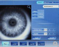 Automatischer Topograph mit Placido-Ring Technologie und 100.000 berechneten Punkten