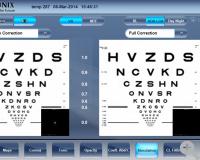 Simulation der Qualität des Sehens: Visualisierung und Gegenüberstellung von Abbildungsfehlern niedriger und höherer Ordnung, PSF und MTF