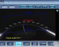 Scheimpflugaufnahme des vorderen Segments, Analyse, Hornhautdicken- und Durchmessermessung, Kammer- und Kappawinkel, Vorderkammertiefe und Volumen